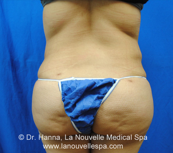 Liposuction Before and After by Dr Hanna, La Nouvelle| Oxnard, Ventura