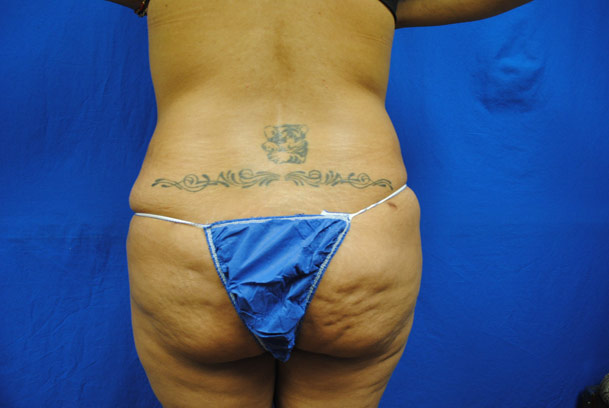 liposuction-ventura-county-female-back-before-by-dr-hanna-la-nouvelle-medical-spa